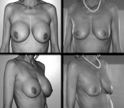 Enlèvement de prothèses mammaires