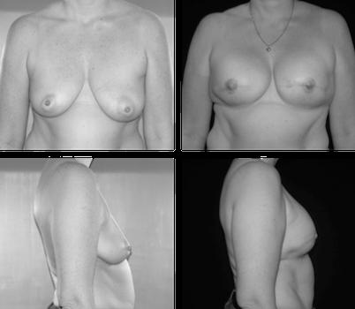 Profylactische mastectomie